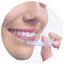 ortodoncia invisible invisalign madrid