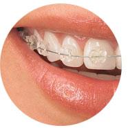 especialistas ortodoncia invisible rapida madrid