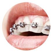 contenidos-tecnicas-ortodoncias-braquets