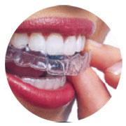 contenidos-tecnicas-ortodoncias-invisible