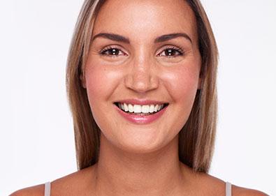 ortodoncia rapida Damon Madrid