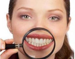 estetica dental blanqueamiento madrid