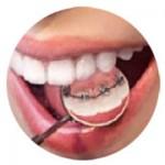 contenidos-tecnicas-ortodoncias-lingual