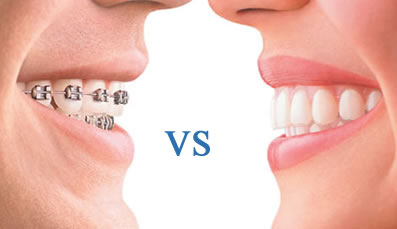 invisalign-ortodoncia-invisible-madrid