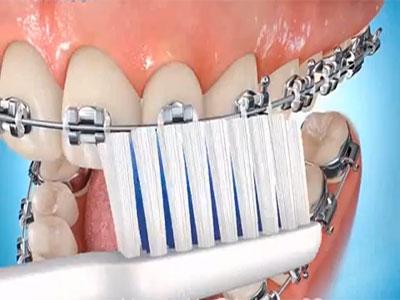 ortodoncia-irrigadores-bucales-3