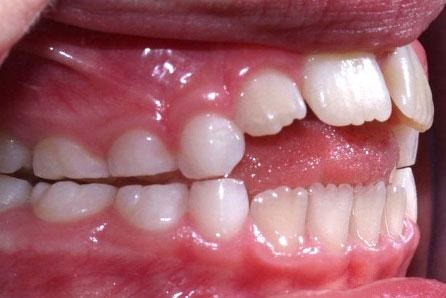 problemas-dentales-chupete