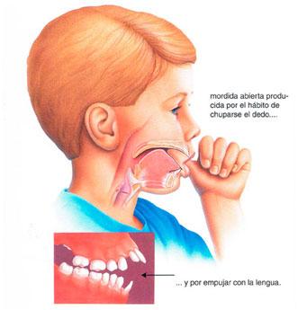 problemas-dentales-succion-pulgar