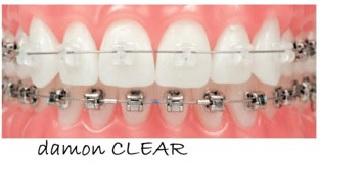 ortodoncia rapida ortodoncia damon
